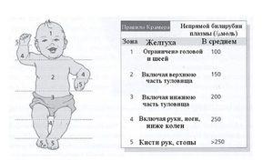 Tipuri de icter