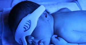 Care este norma bilirubinei la nou-născuți?