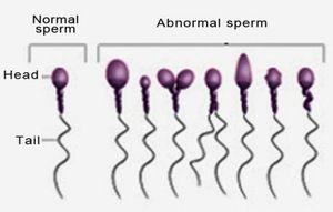 Nu este spermă sănătoasă