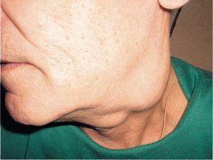 Tipuri de tumori la nivelul gâtului