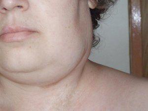 Simptomele bolilor la nivelul gâtului