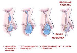 Ouă la bărbați - cum să diagnosticheze problema