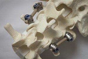 Tehnica de a scăpa de hernia intervertebrală