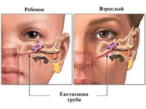 Trompeta eustachiană la un adult și un copil