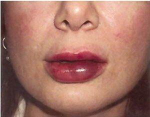 Cauzele edemului buzelor