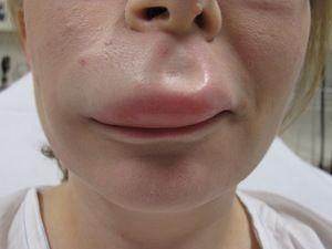 Ce poate umflarea buzelor