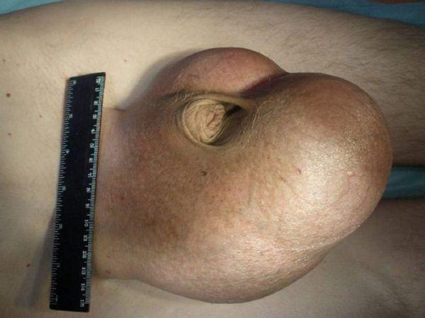Fotografia arată inflamarea testiculelor