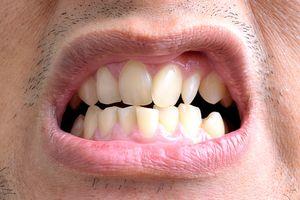 Patologia și boala, care este tratată de un medic ortodont