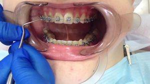 Metode de aliniere a dinților în ortodonție