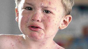 Chinter Infecție Toddler