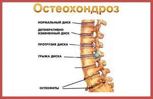 Osteocondroza și simptomul lui Neri - ce este?