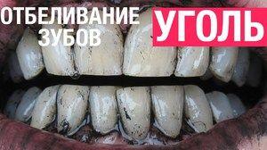 Metoda de albire a dinților
