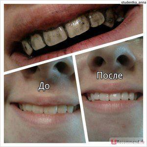 Albirea dinților cu cărbune activat