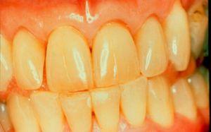 În cazul în care dinții au devenit galbeni de la fumat sau alimente, puteți să le întoarceți albul