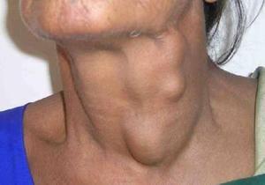 Umflarea subcutanată la nivelul gâtului - ce este?