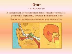 Tipuri de otitis - o diagramă vizuală