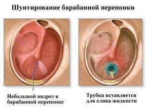 Măsurarea urechilor - trăsături ale procedurii