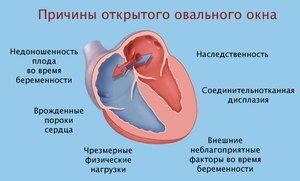 O fereastră ovală în inima unui nou-născut