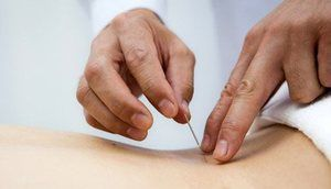 Acupunctura cu o hernie a coloanei vertebrale