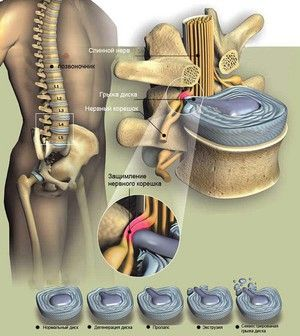Lombare hernică - o diagramă clară a manifestării bolii