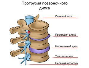 Motivele pentru apariția unei hernie sunt prezentate în figură