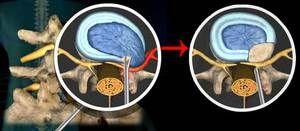 Discectomia este una dintre metodele moderne de înlăturare a herniilor coloanei vertebrale