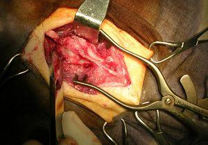 Laminectomia - ce este această procedură