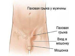 Cauzele herniei