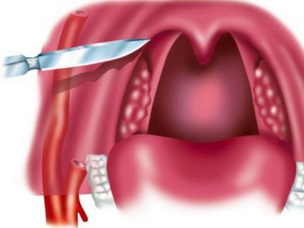 Ce se face în timpul operației cu abces paratonzilar