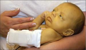 Semne de icter la nou-născut
