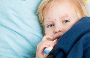 Cum se dezvoltă varicela la copii