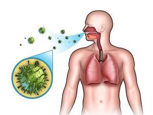 Cum se transmite pneumonia?