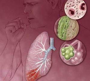 Ce este pneumonie?