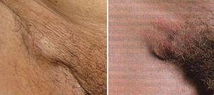 Ganglionii limfatici în bolile de inghinale