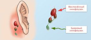 Cum de a determina dacă un ganglion limfatic este inflamat sau nu?