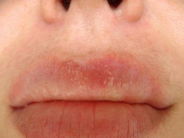 Cum de a vindeca buzele de la puncte