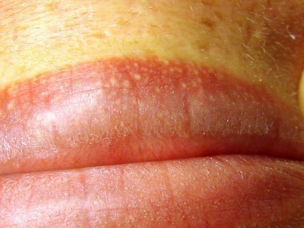 Metode de tratare a buzelor din pete albe