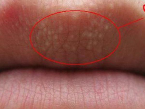 De ce sunt puncte pe buze