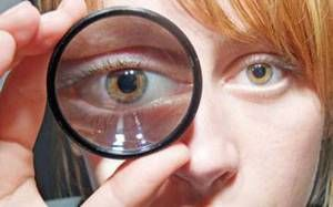 De ce există umflarea ochilor