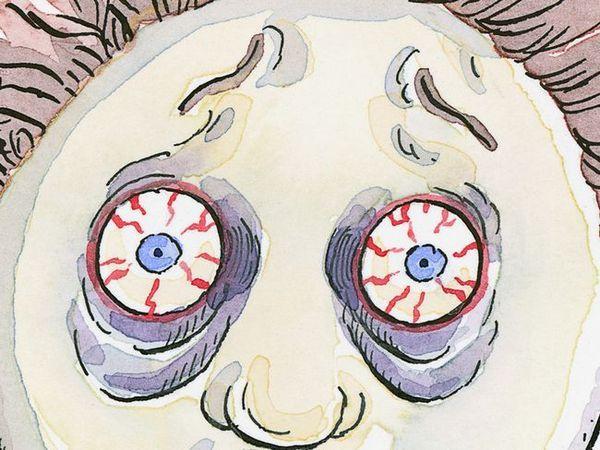 Cum să eliminați vene roșii în ochi