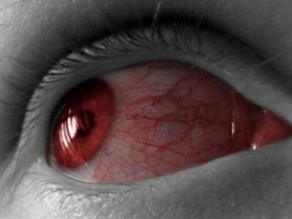 Ce trebuie să faceți dacă ochiul este spălat