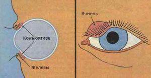 Cum să scapi de orz pe ochi