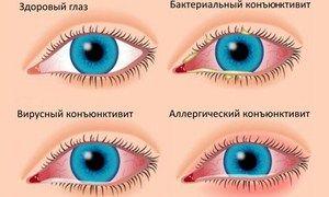 De ce ochii se înroșesc