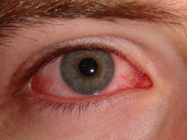 Blefarita este cauza puffiness a pleoapelor