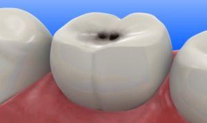 Tratarea punctelor pe dinți