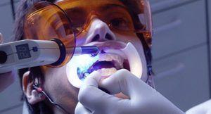 Laser de albire dinti