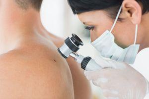 La primirea de la dermatolog