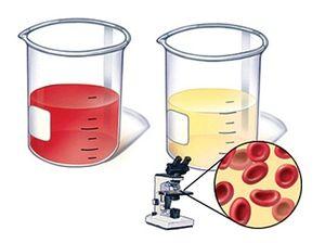 Sângerare severă sau multă sânge în urină a unui bărbat - care este motivul