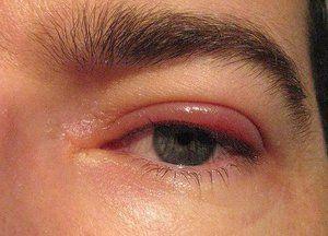 Descrierea bolilor inflamatorii ale ochiului