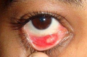 Caracteristicile proceselor inflamatorii ale ochilor